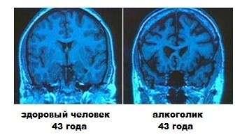 Енцефалопатія головного мозку: симптоми і лікування
