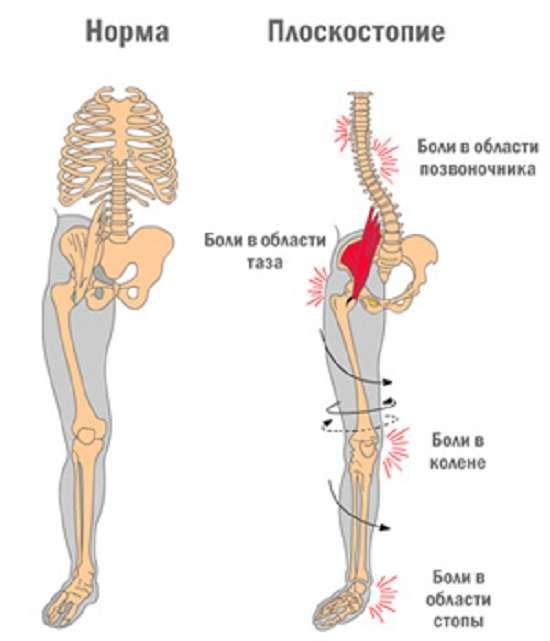 Плоскостопість: симптоми і лікування