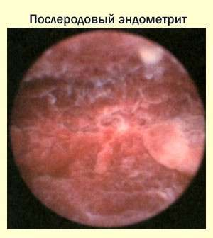 Ендометрит: симптоми і лікування