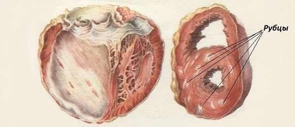 Постінфарктний кардіосклероз: симптоми і лікування