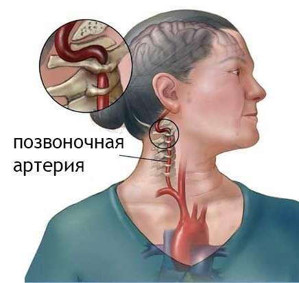 Синдром хребетної артерії: симптоми і лікування