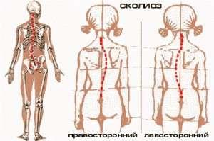 Сколіоз: симптоми і лікування