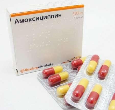 Пієліт: симптоми і лікування