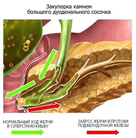 Біліарний панкреатит: симптоми і лікування