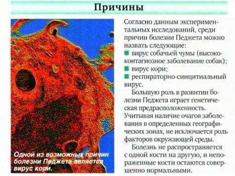 Хвороба Педжета: симптоми і лікування