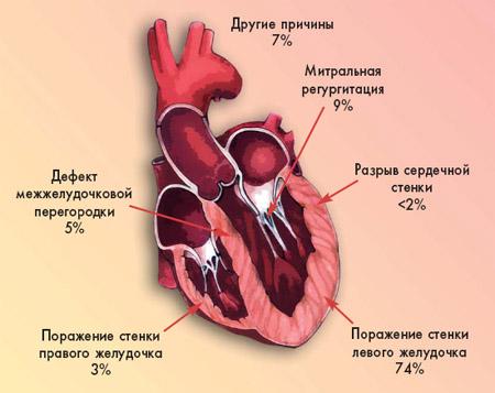 Кардіогенний шок: симптоми і лікування