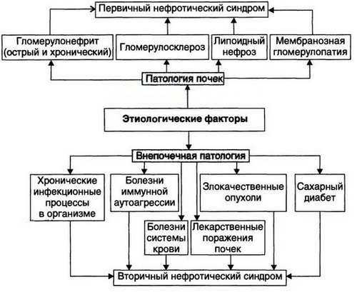 Нефротичний синдром: симптоми і лікування