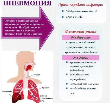 Правобічна пневмонія: симптоми і лікування
