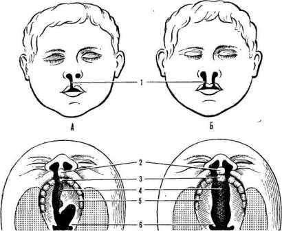 Ринолалія: симптоми і лікування