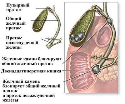 Жовчна коліка: симптоми і лікування
