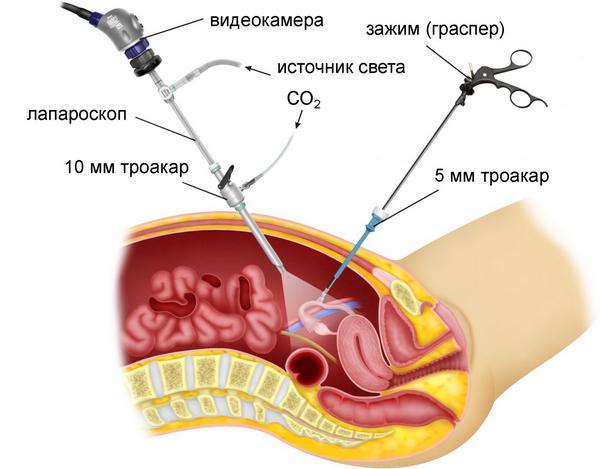 Гіпоменорея: симптоми і лікування
