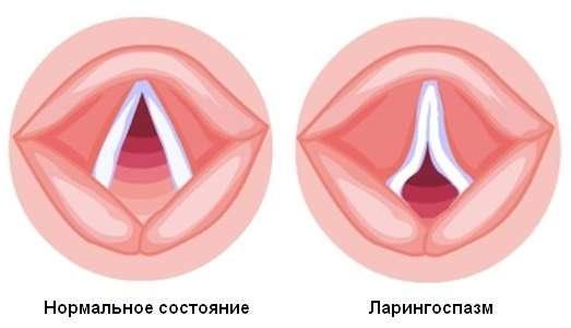 Ларингоспазм: симптоми і лікування