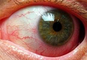Ангіопатія сітківки ока: симптоми і лікування