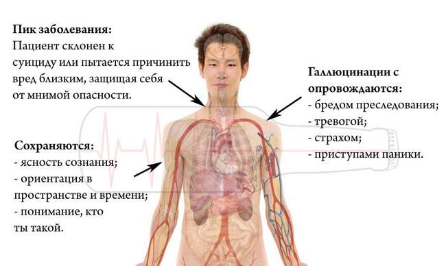 Галюциноз: симптоми і лікування