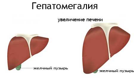 Ацетонемічне блювання: симптоми і лікування