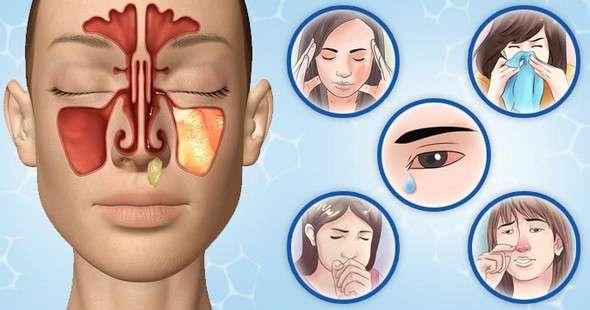 Гнійний гайморит: симптоми і лікування