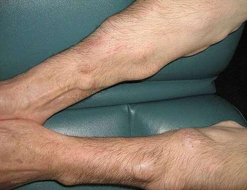 Ліпоматоз: симптоми і лікування
