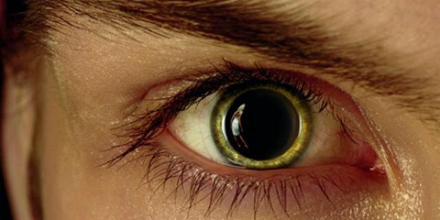 Мідріаз: симптоми і лікування