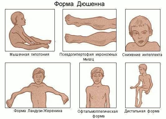 Мязова дистрофія: симптоми і лікування