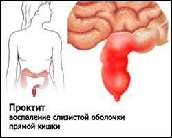 Проктит: симптоми і лікування