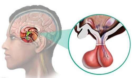 Пролактинома: симптоми і лікування