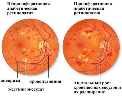 Ретинопатія: симптоми і лікування