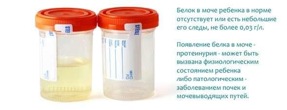 Протеїнурія: симптоми і лікування