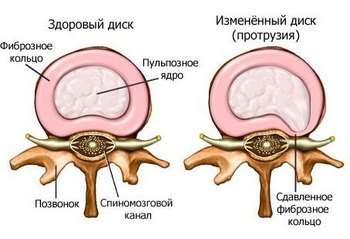 Протрузія: симптоми і лікування