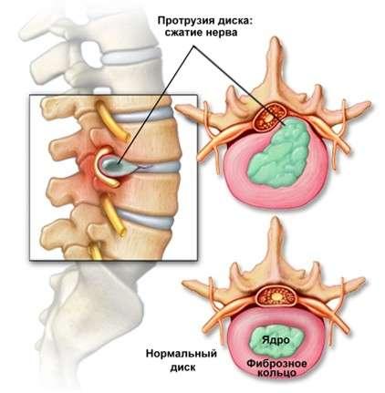 Протрузія поперекового відділу хребта: симптоми і лікування