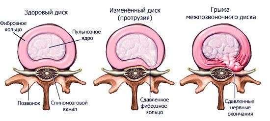Протрузія шийного відділу хребта: симптоми і лікування