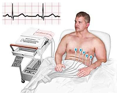 Мікроінфаркт: симптоми і лікування