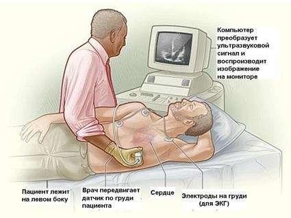Бактеріальний ендокардит: симптоми і лікування