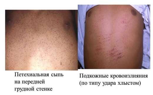Геморагічний синдром: симптоми і лікування