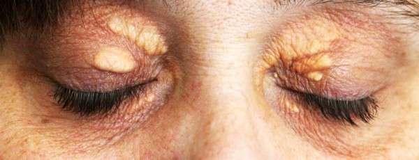 Ксантелазма: симптоми і лікування