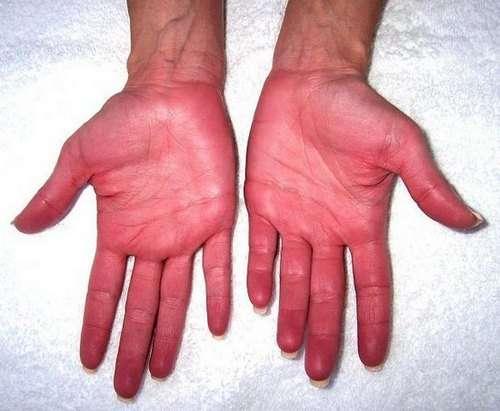 Еритремія: симптоми і лікування