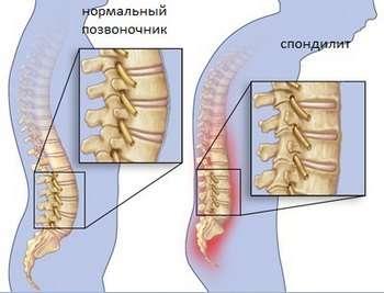 Спондилоартрит: симптоми і лікування
