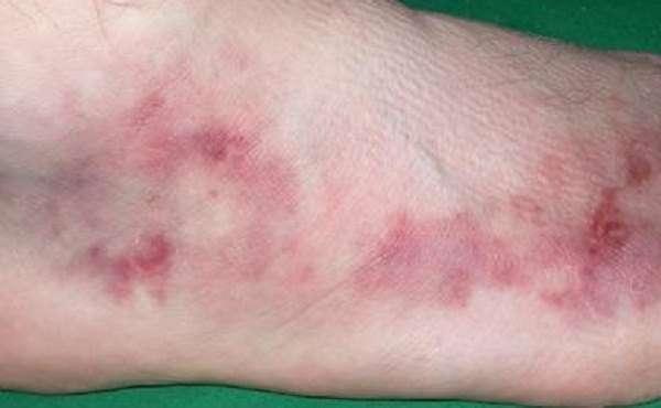 Вузликовий періартеріїт (хвороба Куссмауля-Майера): симптоми і лікування