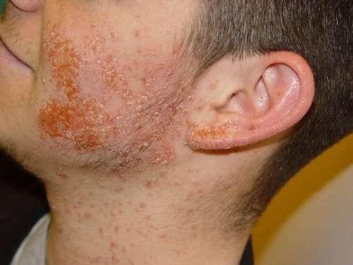 Золотистий стафілокок: симптоми і лікування