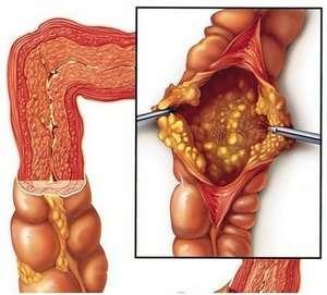 Псевдомембранозний коліт: симптоми і лікування