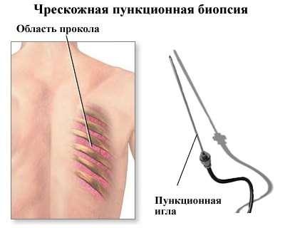 Криптококоз: симптоми і лікування