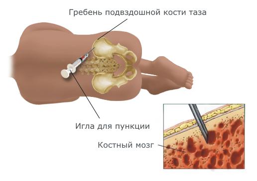 Хвороба Шагаса: симптоми і лікування