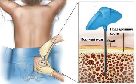 Перніціозна анемія: симптоми і лікування