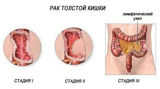 Рак кишечника: симптоми і лікування