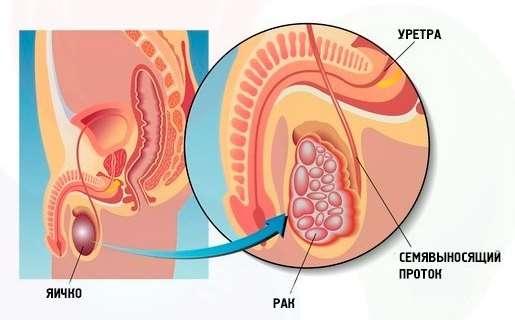 Рак яєчка: симптоми і лікування