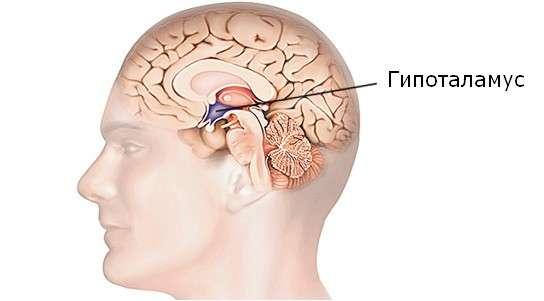 Гіпоталамічний синдром: симптоми і лікування