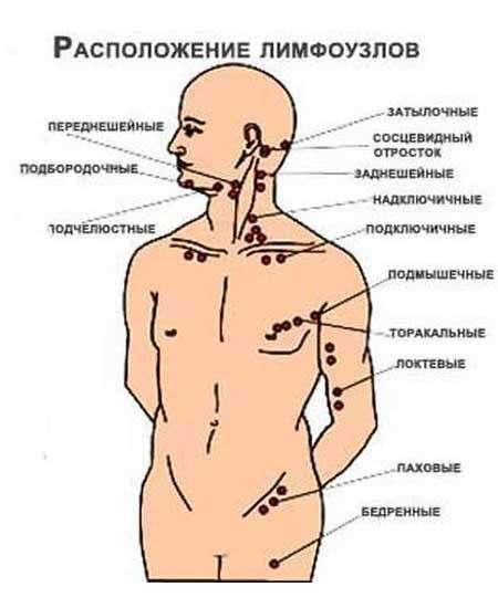 Лімфаденіт у дітей: симптоми і лікування