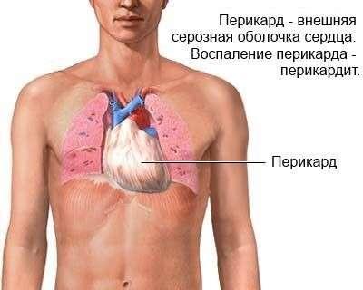 Перикардит: симптоми і лікування