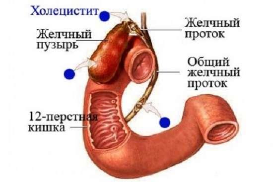 Холецистит: симптоми і лікування