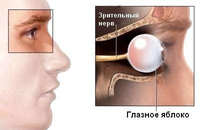Неврит зорового нерва: симптоми і лікування