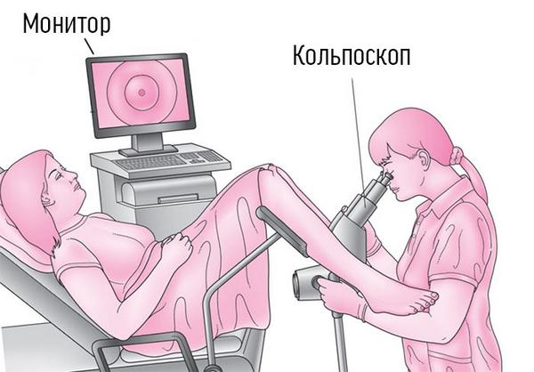 Вульводиния: симптоми і лікування